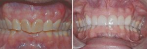 Veneers-and-crowns