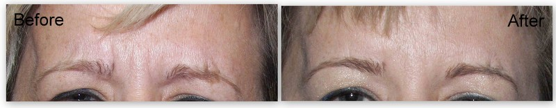 Botox-Juvederm Before-After1